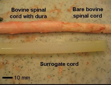 Spinal Cord image
